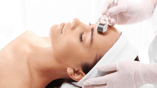 woman getting micro-needling treatment done
