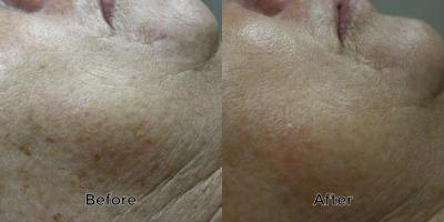 photorejuvenation-before-after1